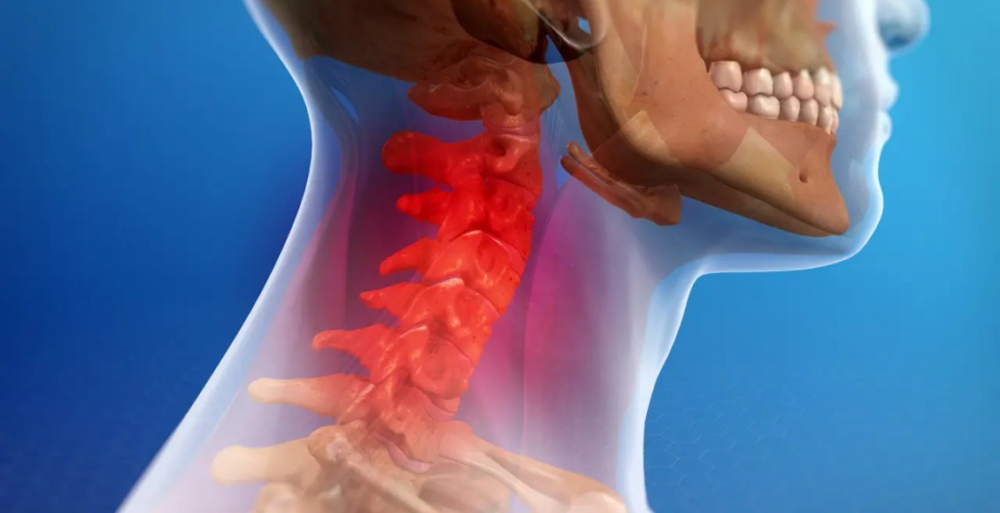 Understanding the Signs and Symptoms of Whiplash Injuries - El Paso Chiropractor