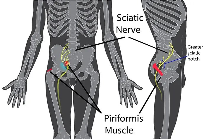 Piriformis_syndrome_01
