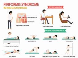 piriformis-síndrome-rehabilitación-ejercicios
