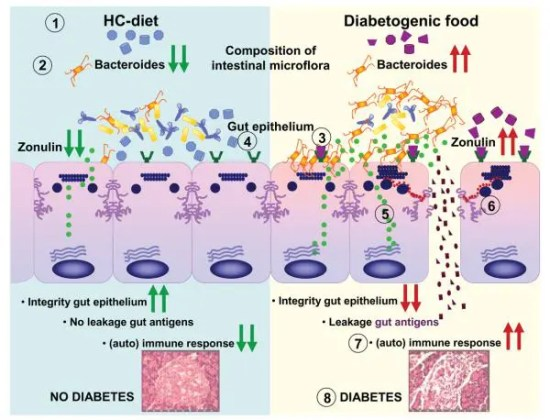 Figure 2 Postulated Mechanism of Action of Gluten in T1D Pathogenesis Image 2