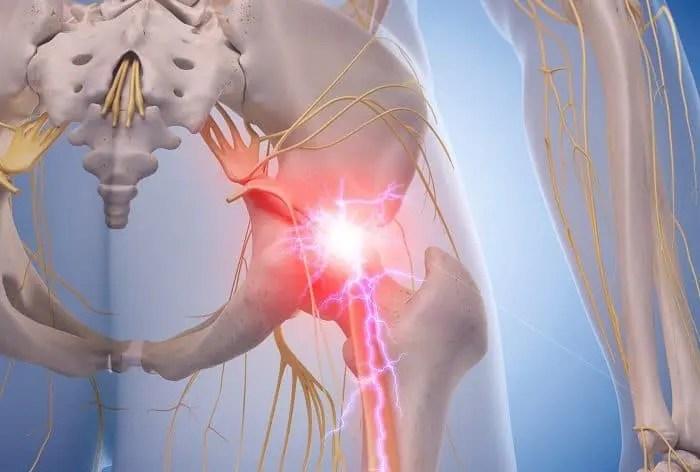 Piriformis Syndrome and Sciatica Treatment | El Paso, TX Chiropractor