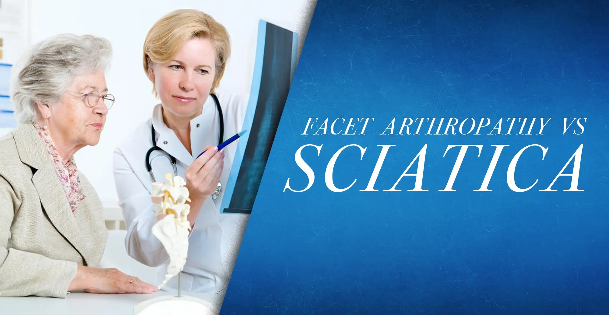 Facet Arthropathy vs Sciatica