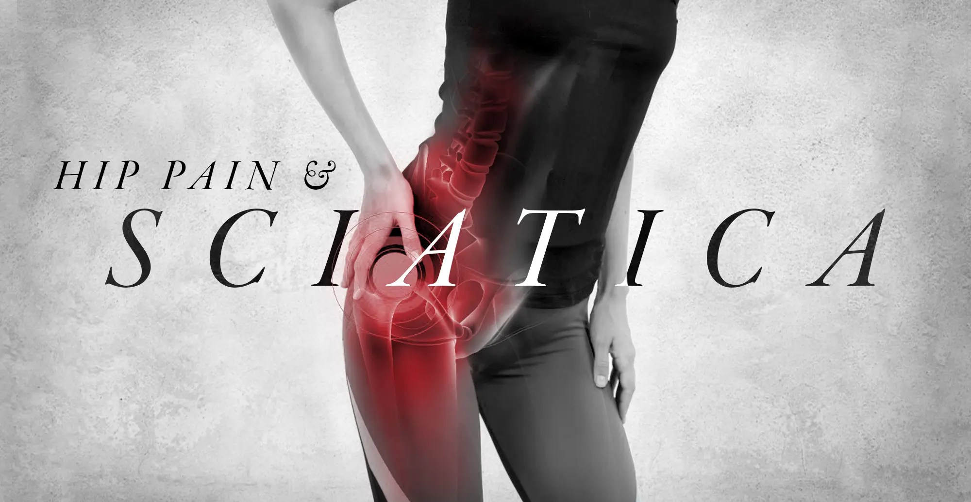 Hip Pain and Sciatica