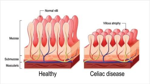 Enfermedades celíacas-Causas-y-Factores de riesgo-alt-722x406