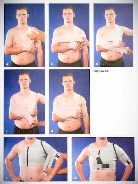 kenőcsök a vállízület ligamentumainak törésére)