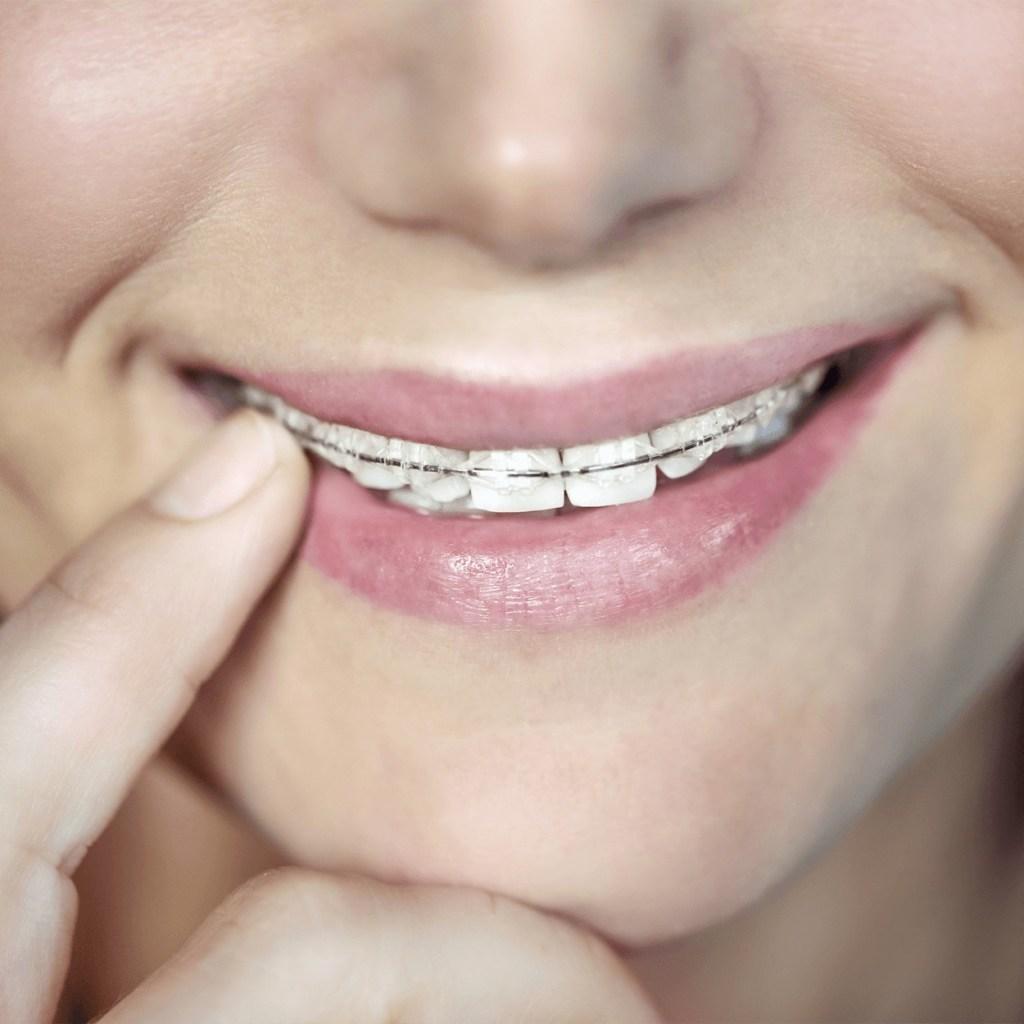 External braces teeth cover
