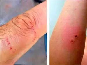 Centipede bites on finger and arm