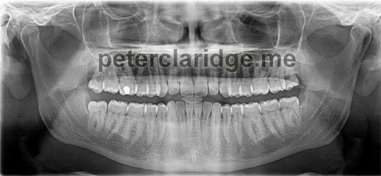 This is the x-ray of my teeth, on the left you can see a lighter shade between the bone and the tooth, this is apparently where infections have 'eaten' away at the bone - reason enough to get your wisdom teeth checked! The solid white mark in the top row of teeth is a filling :(
