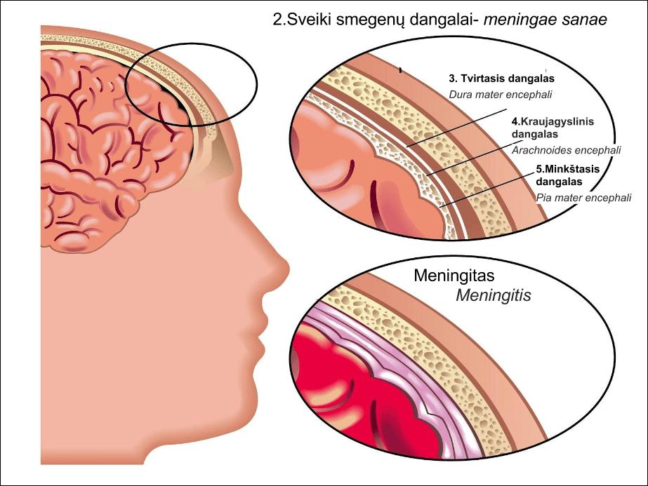뇌수막염 뇌질환