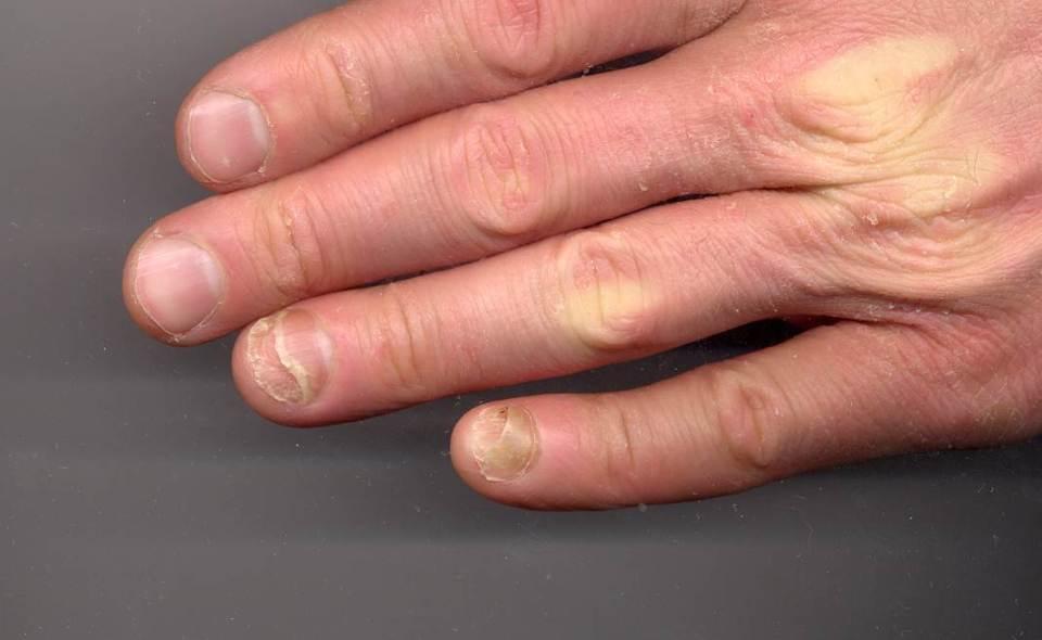 손톱 질환 조갑박리증