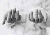 손톱 무좀