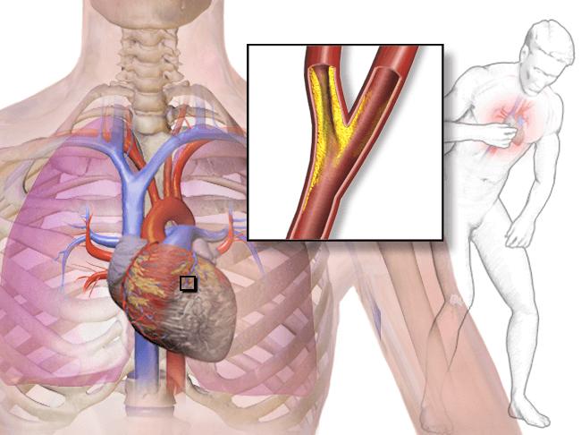 심장, 심장질환