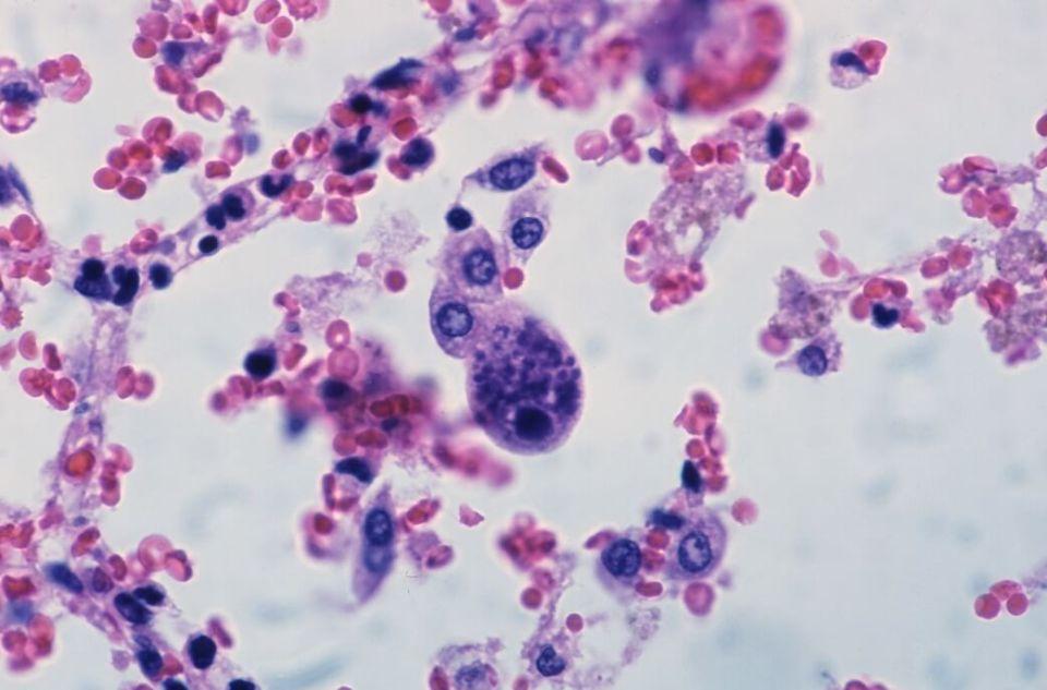 가드넬라균 원인, 증상, 치료
