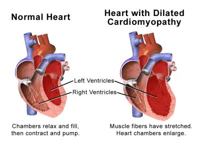 cardiomyopathy dogs