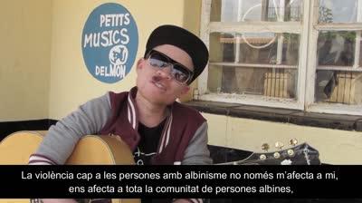 albinisme-definitiu-1-mp4
