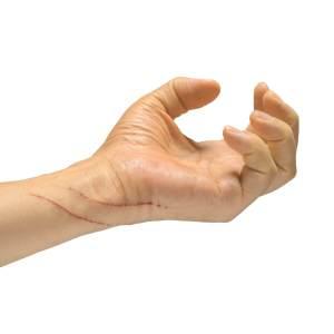 猫のひっかき傷