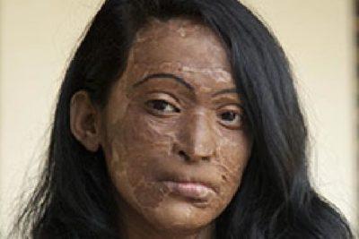 acid-attack-victim2-400x267