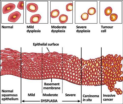 ujian pap smear, ujian pangkal rahim, kanser pangkal rahim, bahaya kanser pangkal rahim,