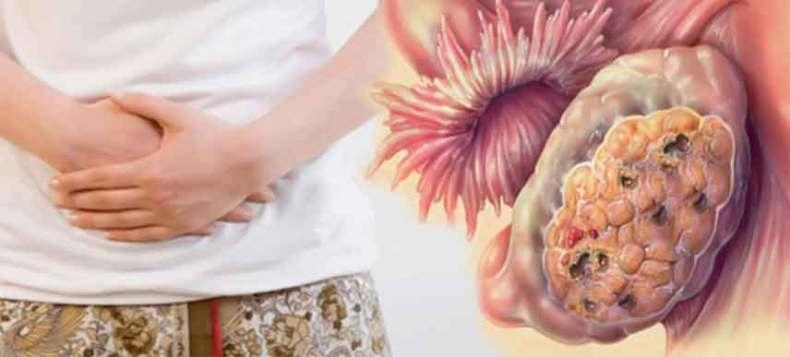 punca perut buncit, perut buncit, perut kembung, perut buncit kerana kanser ovari, kanser ovari, masalah perut berangin, angin dalam perut