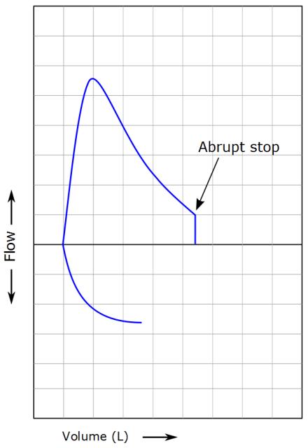 Assessing Flow-Volume Loops | PFT Interpretation
