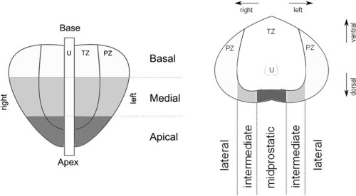 The systematic biopsy patterns targeted 7 sectors bilaterally: transition zone, apex, center, and base, each medially and laterally.