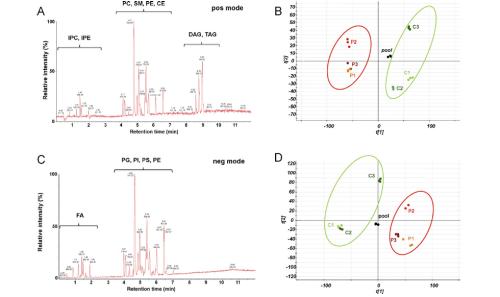 Lipidomics of atherosclerotic plaques