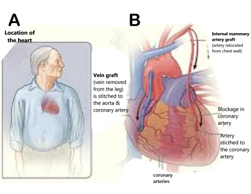 cardiacgraftsampleeditedferezfig1
