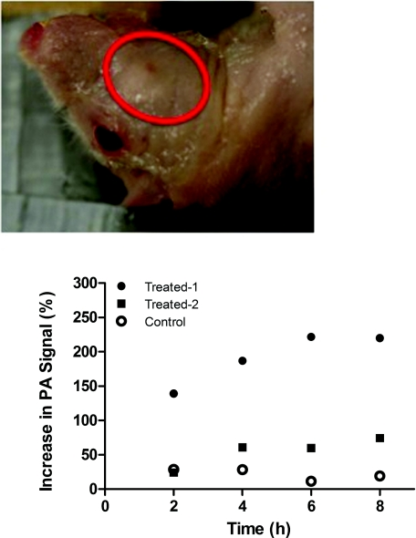 Increase in PA amplitude within the HNSCC tumor after intravenous injection of imaging agent