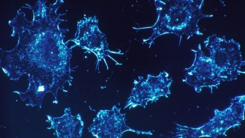 cancer-cells-541954_1920-635x357