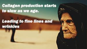 collagen skin ageing