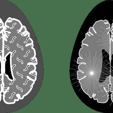 L'IRM 7 Tesla, nouvel outil de diagnostic innovant pour la sclérose en plaques