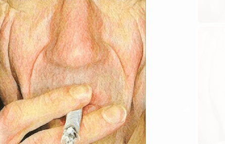 Smoking Cessation Can Prevent Wrinkles