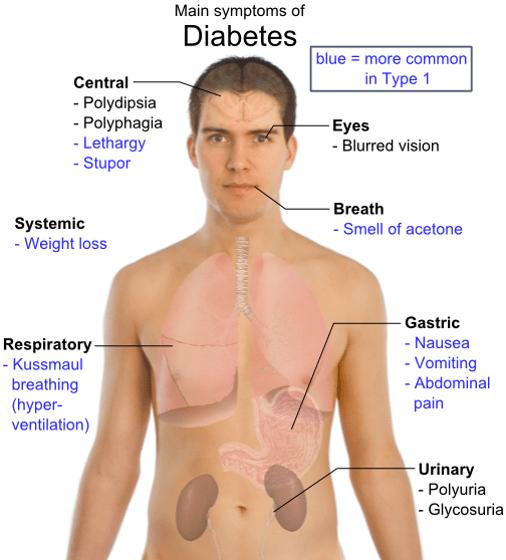 Anti Diabetics Symptoms Epidemiology Treatment Drug Dosage