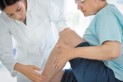 Varicose vein health