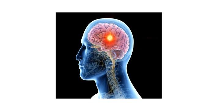 Brain NZT 48 Review-brain health