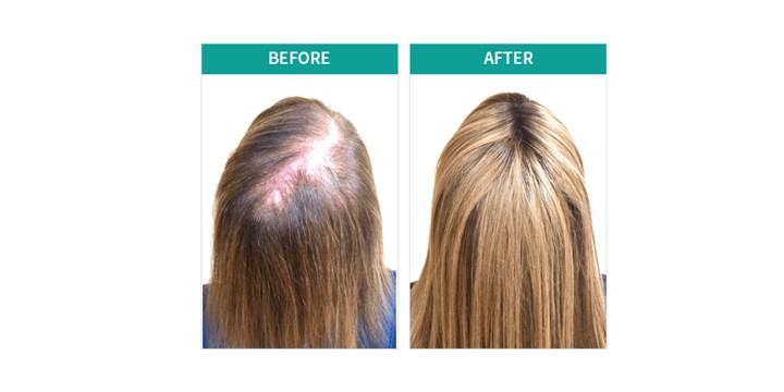 Velogrowth Hair Formula results