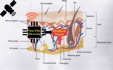 Esperal Implant Network