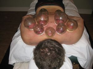 Cupping for back pain
