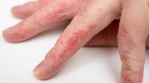 Acupuncture for Eczema