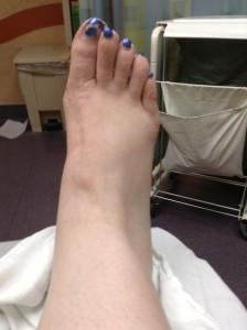 Where is my ankle?