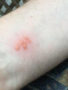 Bug Bites Airbnb Gozo