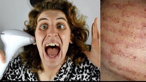 اضرار ازالة الشعر بالليزر