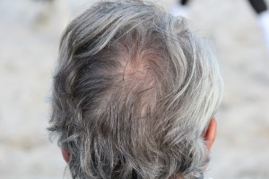 Back of man's head with gray hair