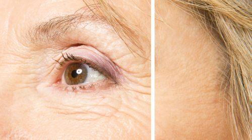 Wrinkles_thumbnail