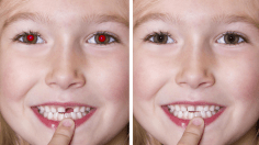 Photoshop Tutorials: How to Remove Red-Eye in Photoshop