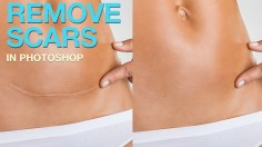 Photoshop Tutorials: How to Remove Scars in Photoshop