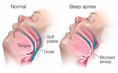 Causes of Fatigue You Need to Know sleep apnea