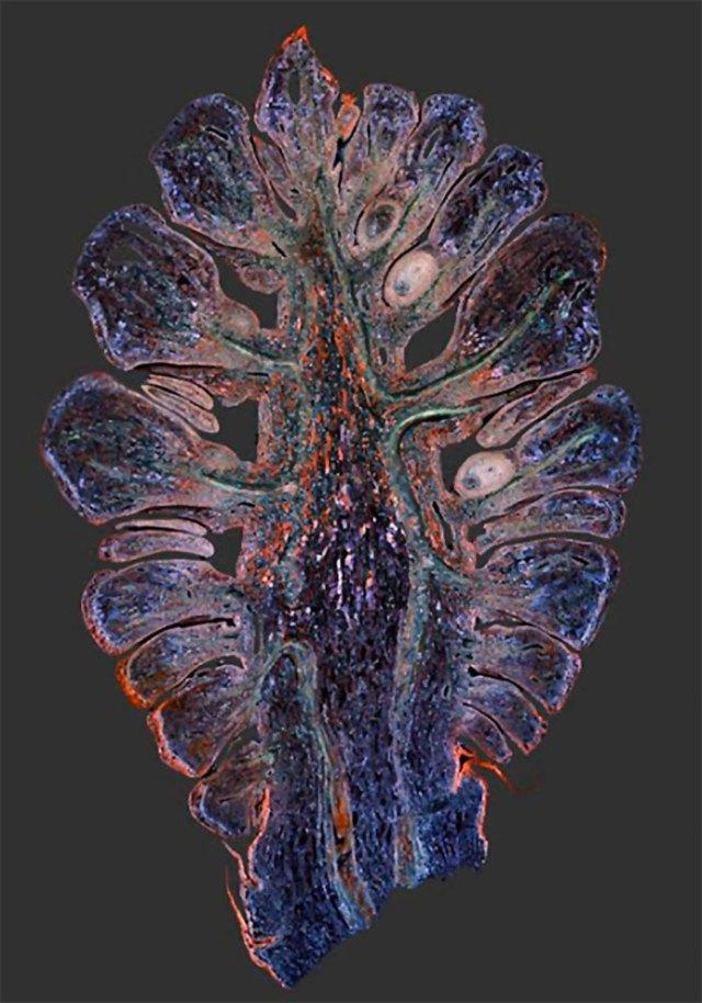 Шишкоподібна залоза в розрізі
