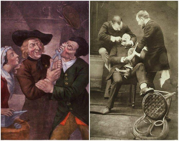 Як 100 років тому у Львові лікували зуби