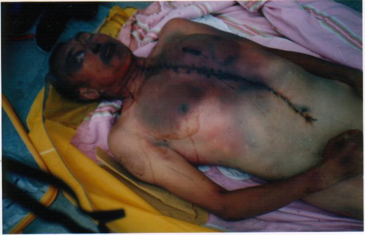 https://i2.wp.com/photo.minghui.org/photo/images/persecution_evidence/torture/images/m2_big.jpg